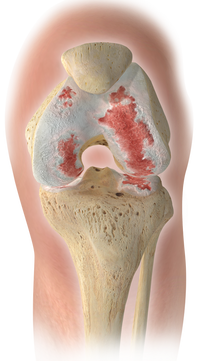 Colored Image of Knee